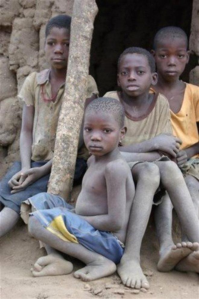Zimbabwe'de Yaşayan Halkın İlginç Parmakları - 1