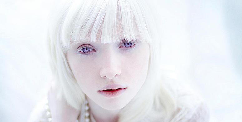 Toplum Tarafından Dışlanan Albino Çocuklardan Sıradışı Bir Proje - 1