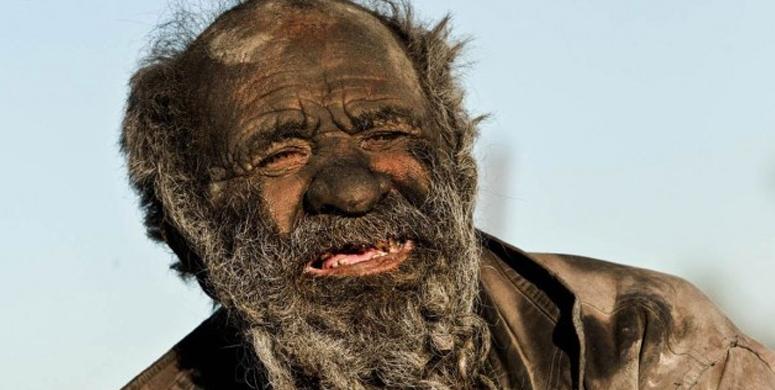 Bir İnsan 60 Yıldır Yıkanmazsa Ne Olur Sorusuna Yanıt Olan Fotoğraflar - 1